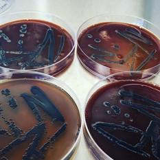 Menstrual blood agar with Vogesella indi