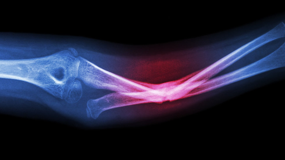X-ray%20fracture%20ulnar%20bone%20(forea