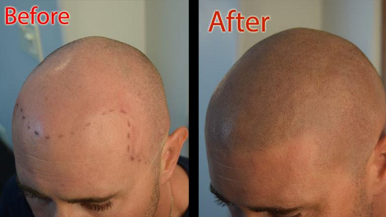 ShavedHead.jpg