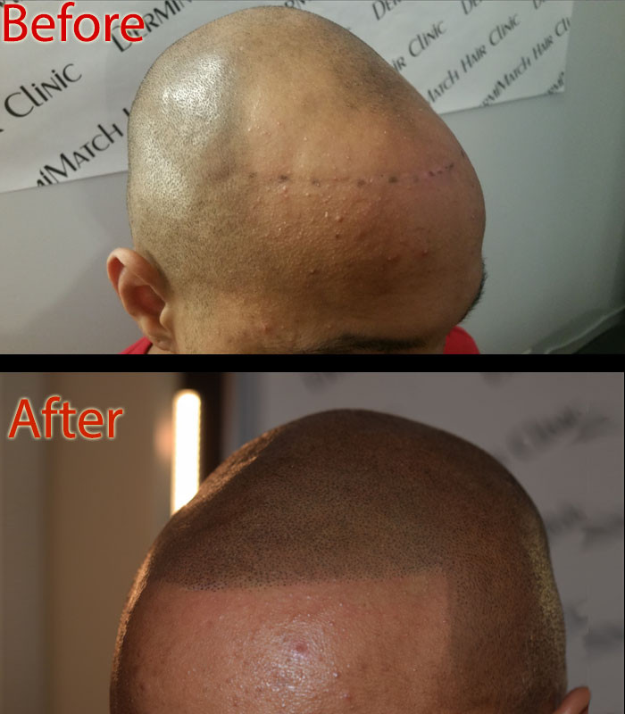 ShaveHeadBlack.jpg
