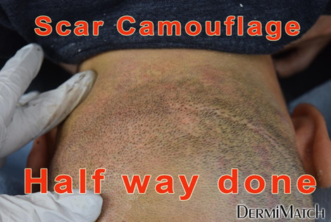 scar-half-done.jpg