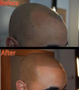 ShavedHead2.jpg