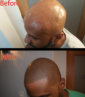 ShavedHeadBlack.jpg
