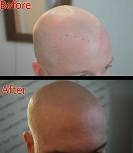 ShavedHead4.jpg