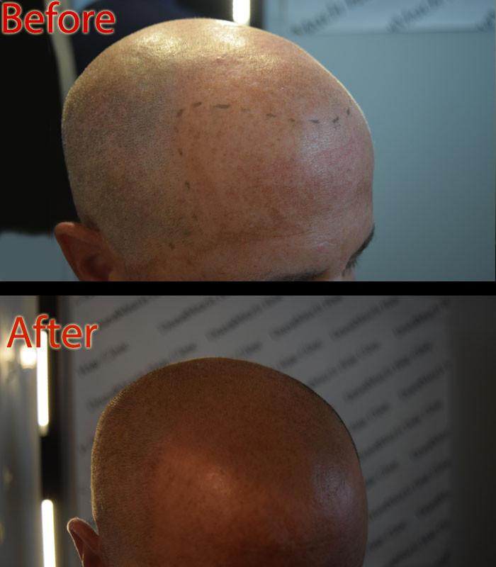 ShavedHeadSaltPepper.jpg