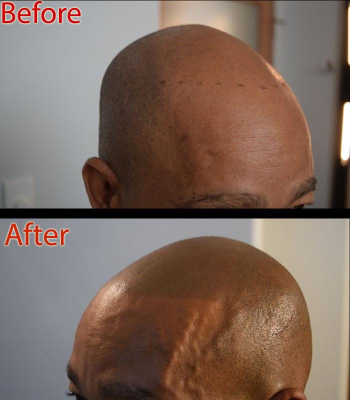 ShavedHead3.jpg