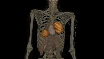tumorestorax.jpg