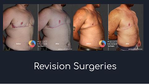 revision surgeries.png