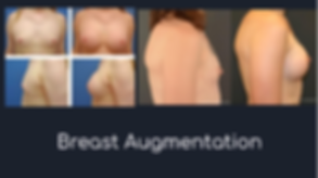 breast augmentation.png