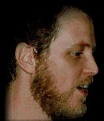 Jonas Federmann