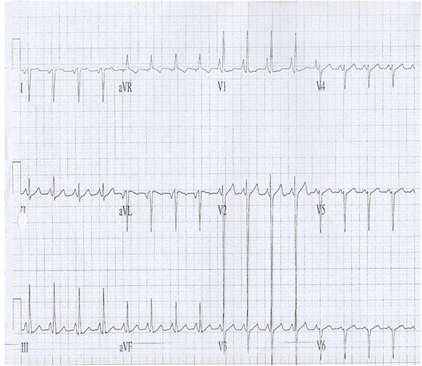COMPLEX CONGENITAL HEART DISEASE_Fig_1.j
