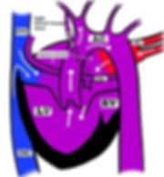 COMPLEX CONGENITAL HEART DISEASE_Fig_4.j