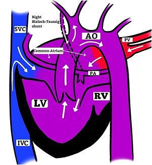 COMPLEX CONGENITAL HEART DISEASE_Fig_4.j