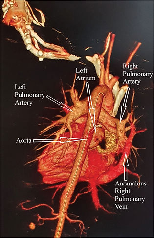 fig_1_The_pulmonary_embolism_that_wasnâ€