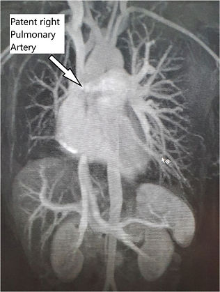 fig_4_The_pulmonary_embolism_that_wasnâ€