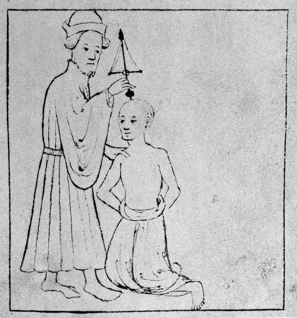 Simple line drawing of a man kneeling on the floor with another man standing holding surgical aparatus to the top of his head.
