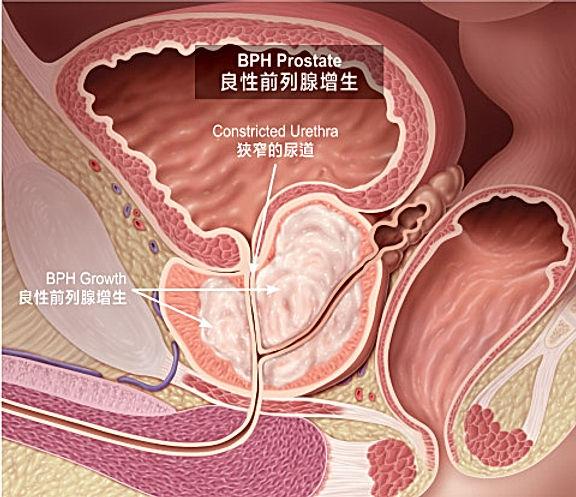 BPH_prostate.jpg