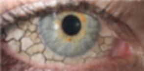 dry eye_edited.jpg