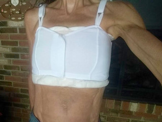 My Health Journey and Breast Implants