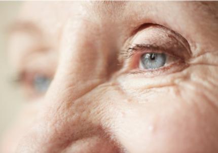 finelines wrinkles Reviva Laser Skin Clinic