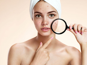 Seven tips for acne treatment success: