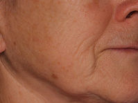 Face-Before.jpg