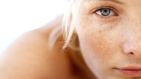 melasma Reviva Laser Skin Clinic