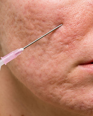 bigstock-Acne-Treatment-57428786_edited.