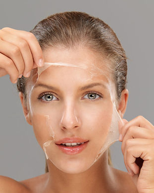 what-is-a-chemical-peel-e1517852109529.j