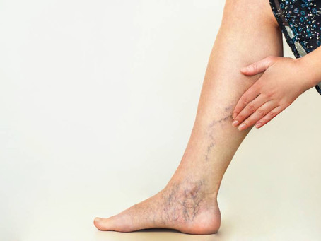 What's up with those varicose veins?