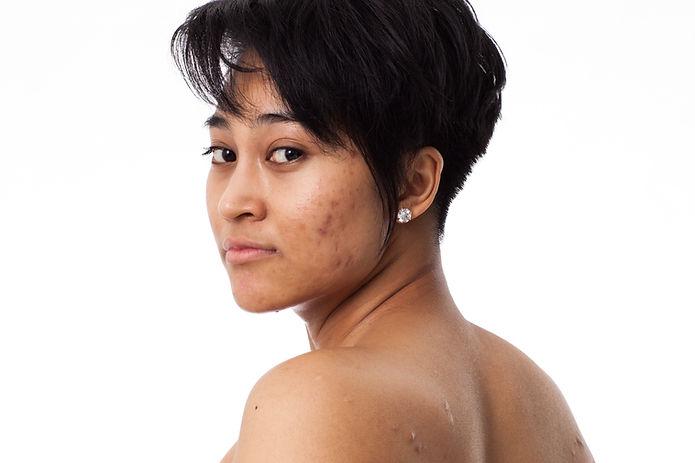 Acne Scars Reviva Laser Skin Clinic