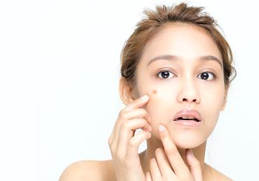 acne Reviva Laser Skin Clinic