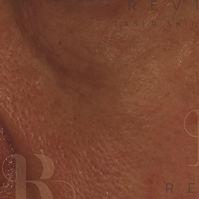 Skinbooster 2 -01 (1).jpg