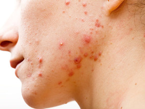 Is Acne Normal and Why Do I Have It?
