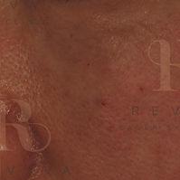 Skinbooster 2 -02 (1).jpg