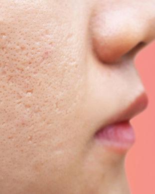 Microneedling_for_acne_scars_edited.jpg