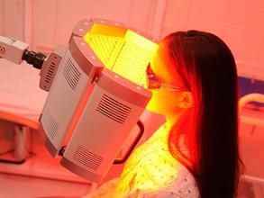 Photodynamic therapy (PDT)