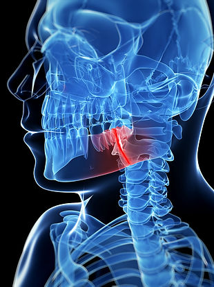 Jaw Fracture Treatment