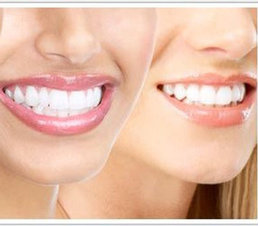 Dental Implants in Louisville, KY