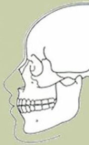 Oral & Maxillofacial Surgery Options in Louisville, KY