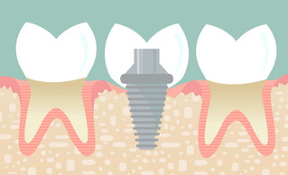 How to Ensure a Successful Dental Implant Experience