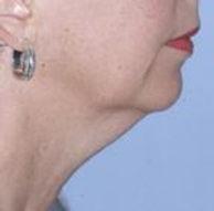 Before Facial Liposucton Photo | Louisville Oral and Maxillofacial Surgery