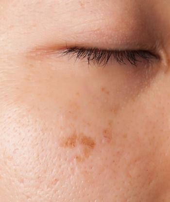 Laser Resurfacing & Smoothing of Scars in Louisville KY | GLOMSA
