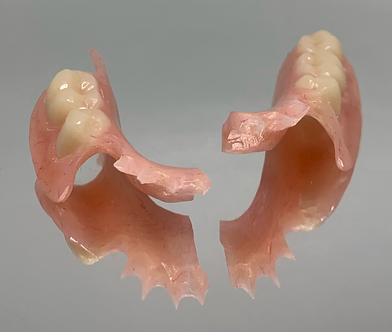 broken denture.png