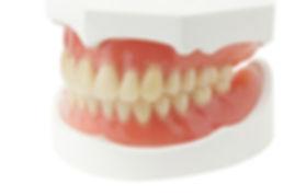 full dentures samples.jpg