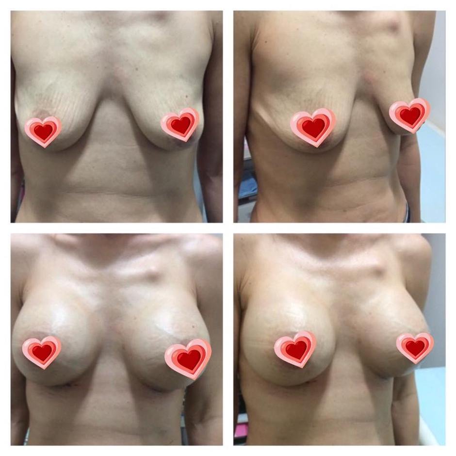 Recent Breast Augmentation Surgery