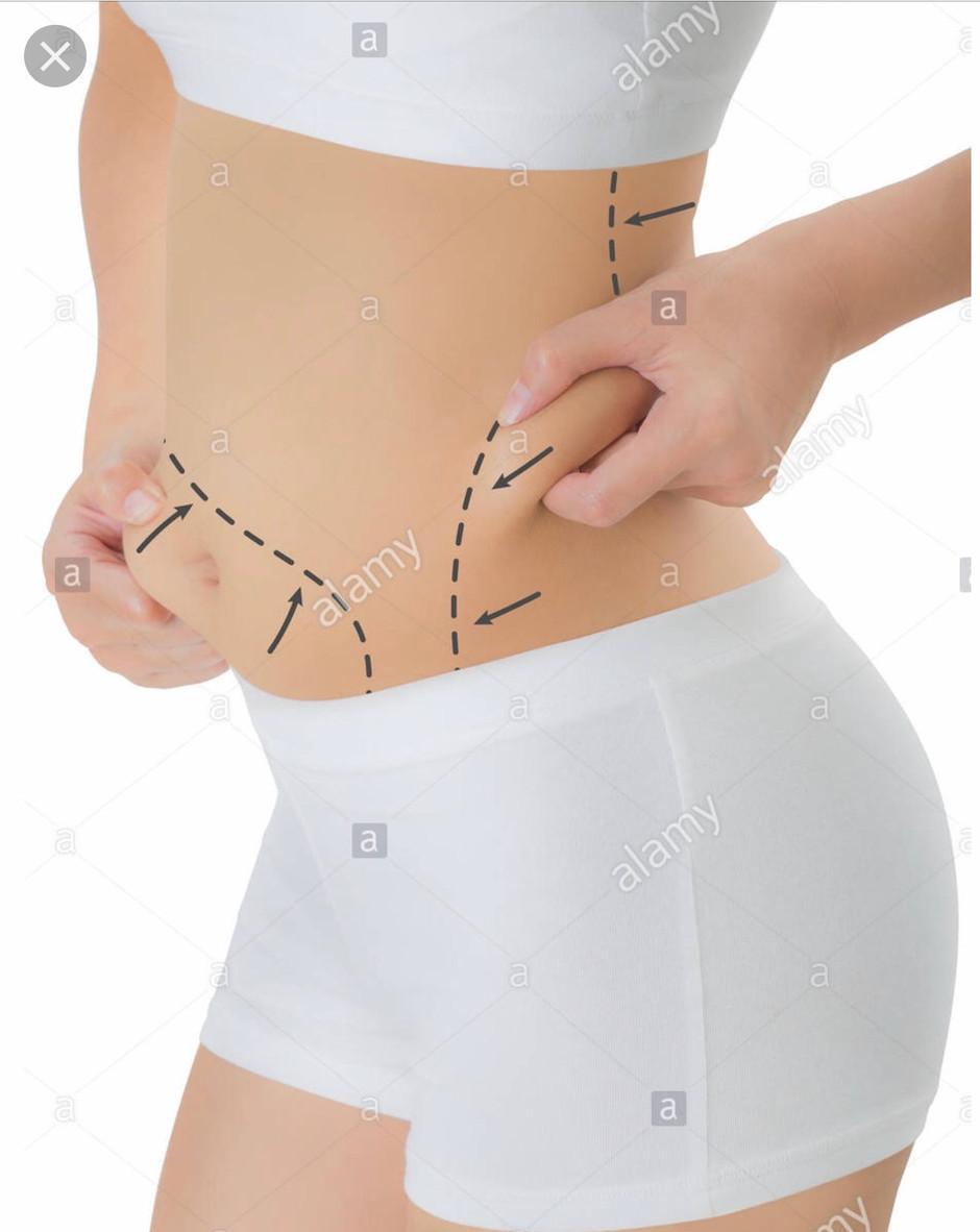 Liposuction Offer for February
