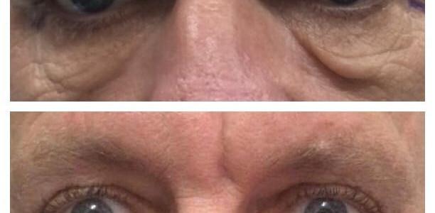 Lower eyelid surgery( Blepharoplasty)