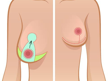 Breast Uplift... recreate your youthful breasts.....