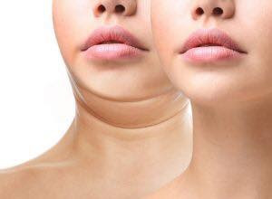 Chin Liposuction April offer